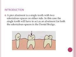 Abutment Definition Good Morning Ppt Video Online Download