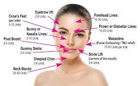 Botox Dosing Chart How Much Botox Do I Need