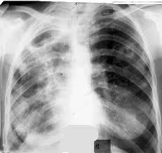 Туберкулез Реферат Инфильтративный Туберкулез Реферат