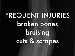 Image result for frequent injuries