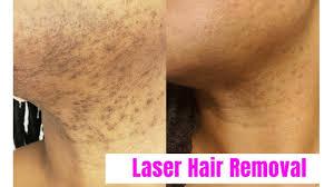vlog laser hair removal for black women romeo juliette laser hair removal