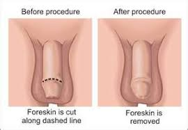 About half of boys in the U S  today are circumcised  but they may CIRP org