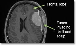 Meningioma Brain Tumor