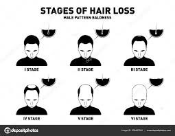 Male Pattern Baldness Stages Interesting Design Ideas