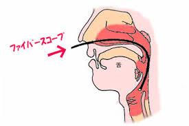 「鼻 ファイバー」の画像検索結果