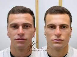 Lucas Lima mostra resultado de harmonização facial e vira assunto nas  redes; veja o antes e depois - Esporte News Mundo