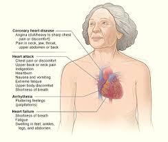 heart attack   monterey bay holistic allianceheart disease symptoms