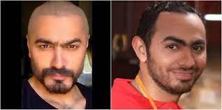 كيف تغيرت ملامح تامر حسني؟: طبيب يكشف عدد عمليات التجميل - المصري لايت