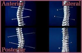 Scoliosis Degrees Of Curvature Chart Scoliosis