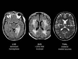 small vessel disease dementia