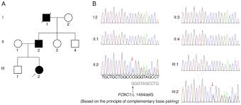 A Novel Mutation Of Foxc1 In A Chinese Family With Axenfeld