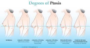 Ptosis Chart Breast Ptosis Saint Sam
