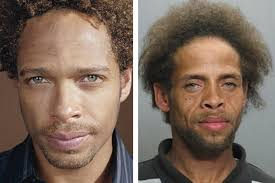 before and after s can be extremely dangerous and can even prove to be fatal when taken in extreme high doses often it is seen that famous actors
