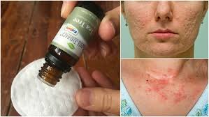 10 Reasons To Put Tea Tree Oil On Your Skin: Beat Acne, Eczema & More