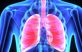 Chronic asthma is defined by inflammation, over production of mucus, and airway remodeling