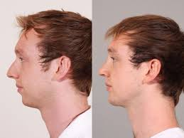 Chin Implant Size Chart Open Rhinoplasty And Chin Implant Barker Plastic Surgery