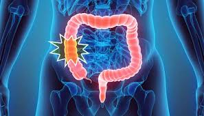 Five Signs of Colorectal Cancer   Moffitt
