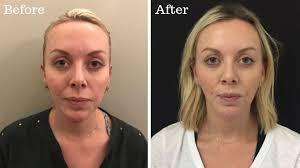 the dark circles treatment that