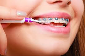 what to do in an orthodontic emergency