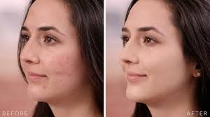 how to conceal and heal acne with cover fx anti blemish s sephora you