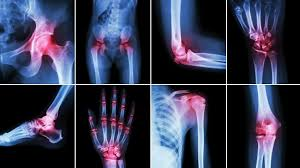 Image result for a well hydrated and dehydrated joint - comparison