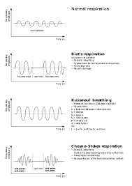 Abnormal Breathing Patterns Inspiration CheyneStokes Respiration Wikipedia