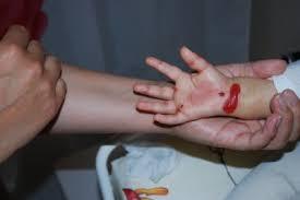 Blodfyllda blåsor på fötterna
