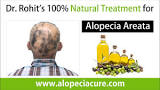 Image result for How to treat alopecia naturally