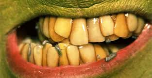 the grinch teeth. Interesting The Teeth GIF With The Grinch Giphy