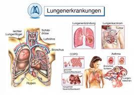 lungenkrebs behandlung