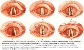 Туберкулез полости рта Проявления туберкулеза гортани