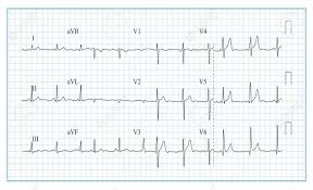 Heart Cardiogram Chart Vector Illustration Of Wave Form On Checked