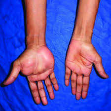 giant palmar lipoma note the extent