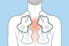 Tens Machine Pad Placement Chart 10 Tips For Effective Tens Unit Pad Placement