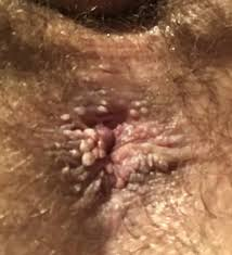 White pimples on anal area