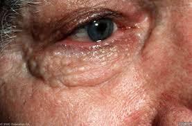 Syringomen: huidkleurige bultjes rond de ogen en op wangen