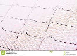 Heart Rhythm Chart Stock Image Image Of Healthcare
