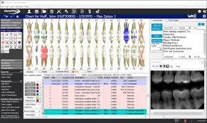 Dentrix Perio Charting Dentimax Software 2019 Reviews Pricing Demo