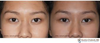 Asian eyelid surgery keeping the folds