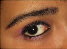 microdermabrasion if i have conjunctivitis image pink eye makeup tips can you wear
