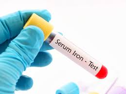Serum Iron Test Procedure Results And Normal Ranges