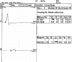 electrodiagnostic stus in multifocal motor neuropathy showing conduction block at nonpressible sites within the an nerve