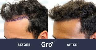 hair transplant nz results before