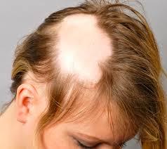 Caduta Dei Capelli Femminile Advanced Hair Clinics
