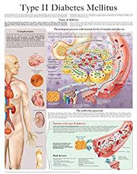 Type Ii Diabetes Mellitus E Chart Full Illustrated Kindle