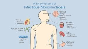 how you know you have mononucleosis