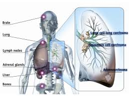 lung cancer symptoms that you need to know even if youre not a common form of lung cancer