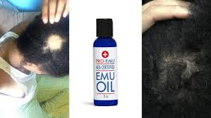 emu oil for hair growth you