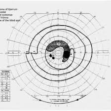 Visual Field Chart Interpretation Dots Squiggles And Triangles Oh My A Visual Field Guide