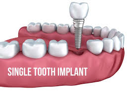 dental implant cost consumer